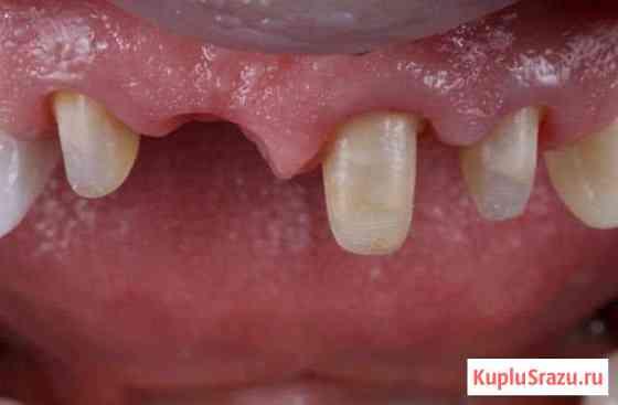 Врач стоматолог Коркмаскала