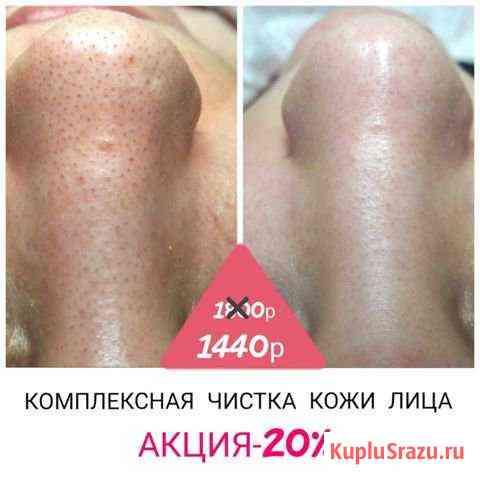 Комплексная чистка кожи лица Анапа